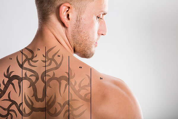Tattoo Removal at Electrolysis and Laser Center